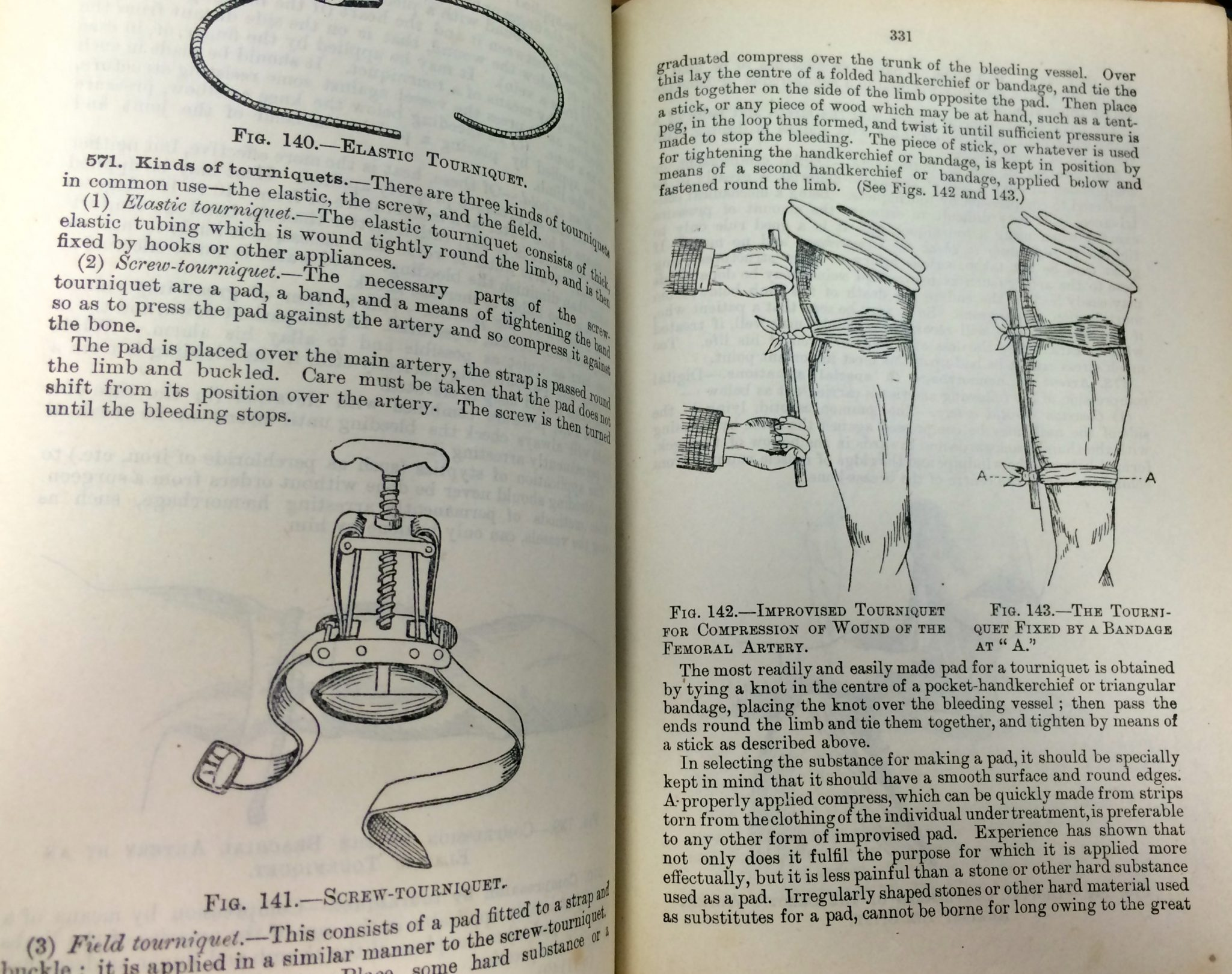 Use of tourniquets, 100 year old first aid still used.